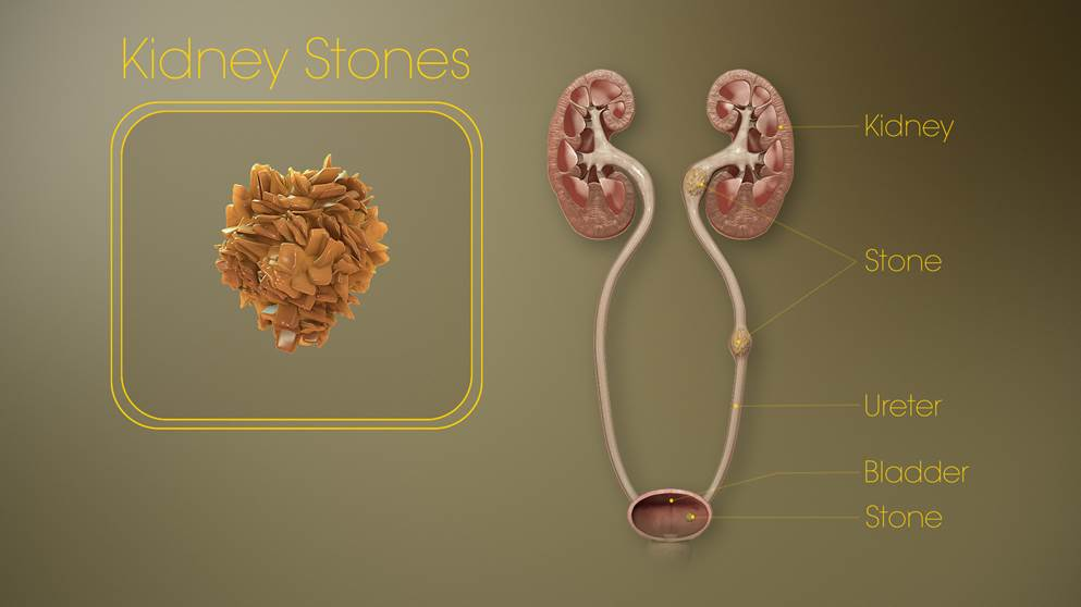 WHAT CAUSES KIDNEY STONES?