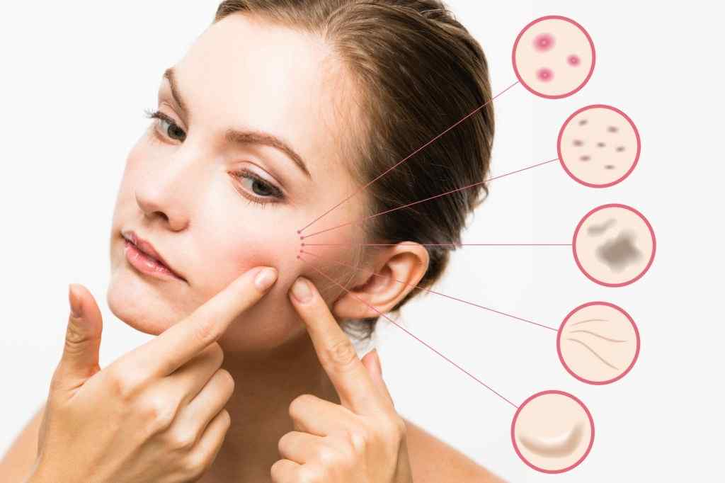 drkmh THE ACNE DIET: GUIDE TO EATING FOR CLEAR SKIN