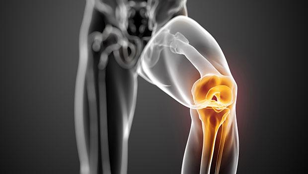 Drkmh Knee Arthroscopy