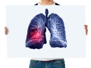 LUNG & LIVER CANCER