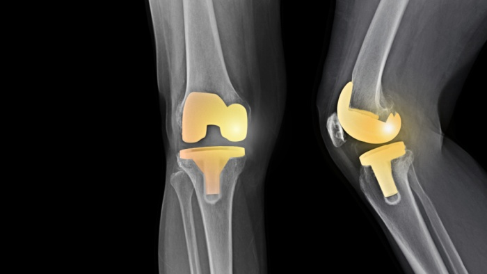 drkmh-total knee replacement