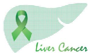LIVER CANCER FAQ'S
