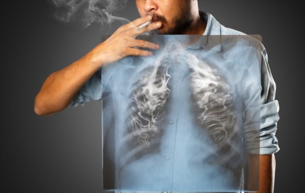 drkmh SMOKING AND LUNG CANCER